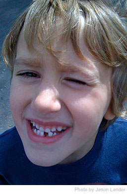 Dealing With Kids Losing Teeth